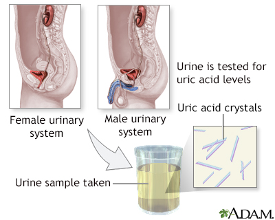 24 hour urine collection patient instructions
