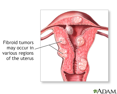 Uterine Fibroids And Hysterectomy Trihealth Discover The Power Of