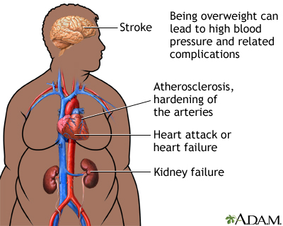 the steps to overcome the serious medical condition obesity If you have diabetic legs it can be a serious warning call that the body is losing the overcome  or medical condition  steps ★★ obesity and diabetes the.