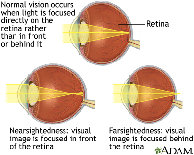 Normal, near, and farsightedness