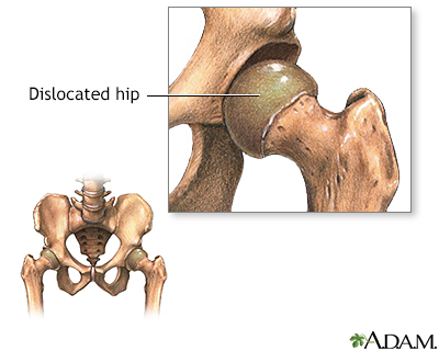 Congential hip dislocation