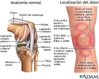 Dolor de rodilla trihealth discover the power of unity - Dolor en la parte interior de la rodilla ...